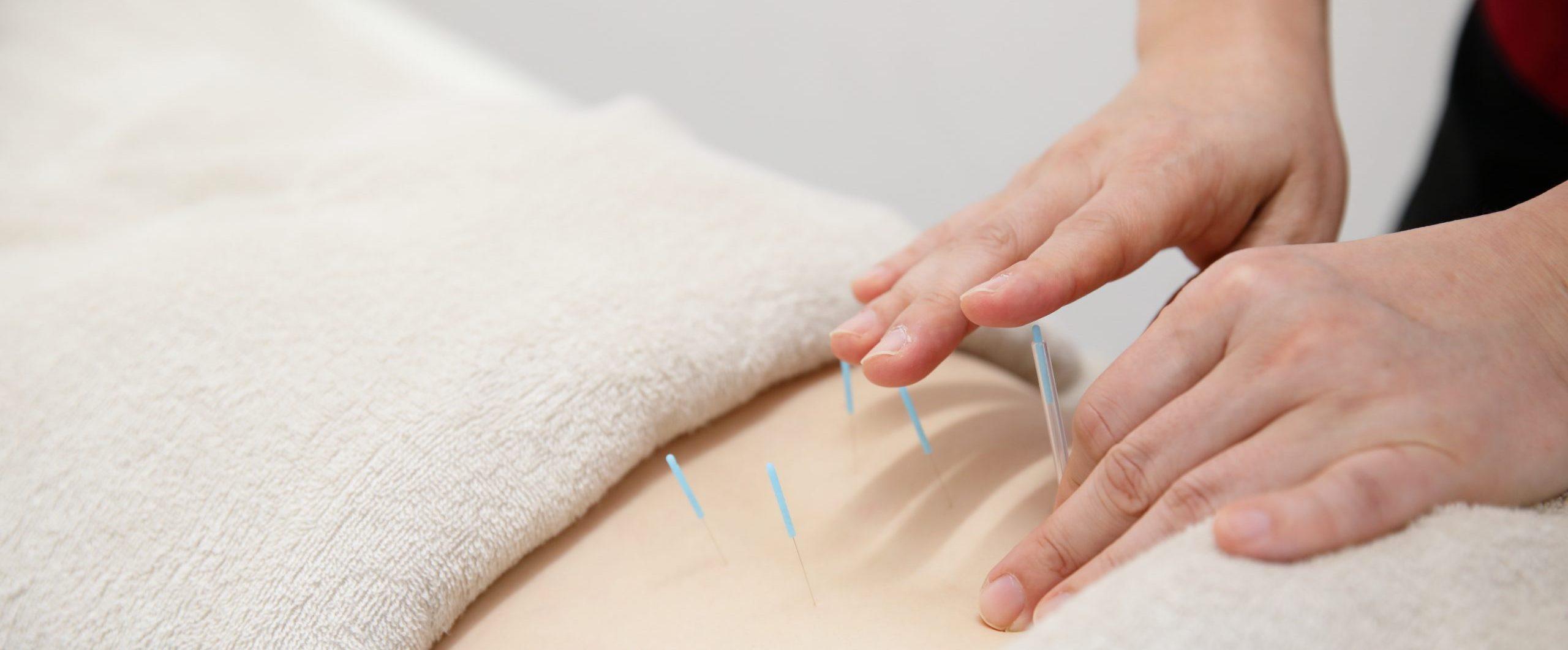 鍼灸治療|川崎市多摩区の稲田堤鍼灸整骨院